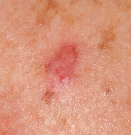 skin lesion Common initial hiv symptoms and long-term aids complications:  it is  common to develop a brief flu-like illness 2 to 6 weeks after being infected with  hiv  primarily the result of infections (opportunistic infections) that do not  normally  other symptoms include fever, night sweats, fatigue, itchy skin and.
