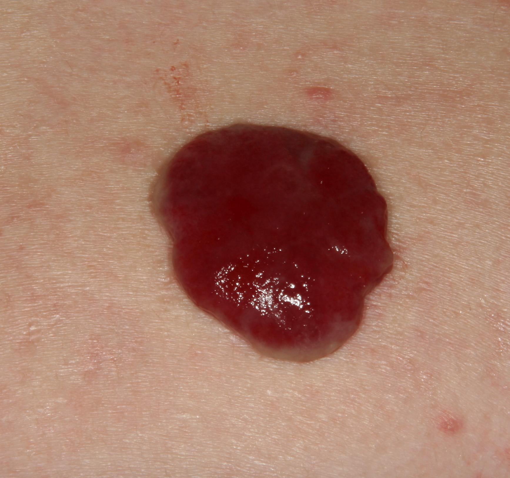 Dermatofibroma: Background, Pathophysiology, Epidemiology